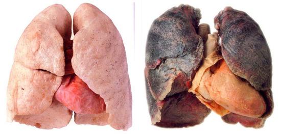 「肺癌」の画像検索結果