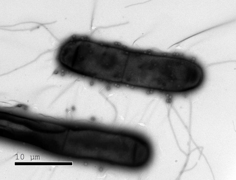 박테리아는 파지 바이러스(작은 공 모양)의 공격에 맞서서 다양한 면역 방어 시스템들을 갖추고 있다. 최근 이스라엘 연구진이 이전까지 몰랐던 박테리아의 면역 방어 시스템들을 여럿 발견했다. 이스라엘 바이츠만과학연구소 제공