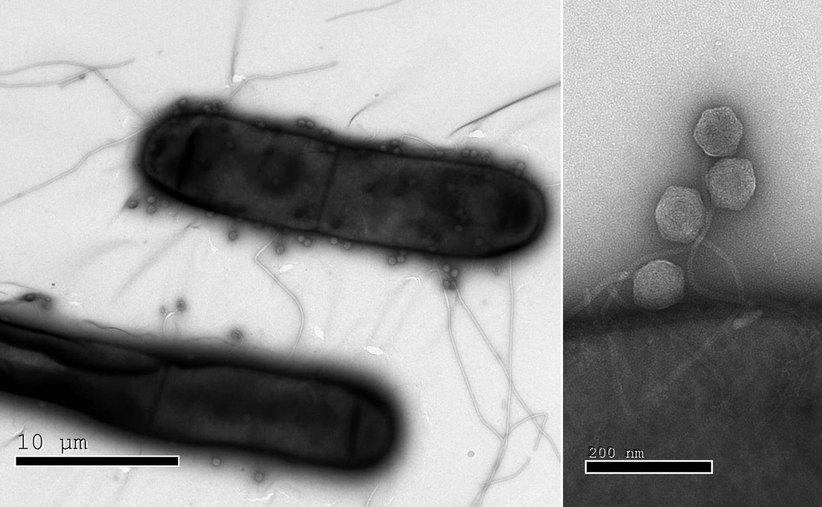 박테리아는 단세포 생물이지만 바이러스의 공격에 맞서 다양한 면역방어 시스템을 갖추고 있다. 최근 이스라엘 연구진이 이전까지 몰랐던 박테리아의 여러 면역방어 시스템을 새로 발견했다. 왼쪽의 전자현미경 영상은 대장균 껍질에 달라붙은 많은 바이러스들(작은 공 모양)을 보여준다. 오른쪽은 바이러스를 중심으로 확대한 영상. 이스라엘 바이츠만과학연구소 제공