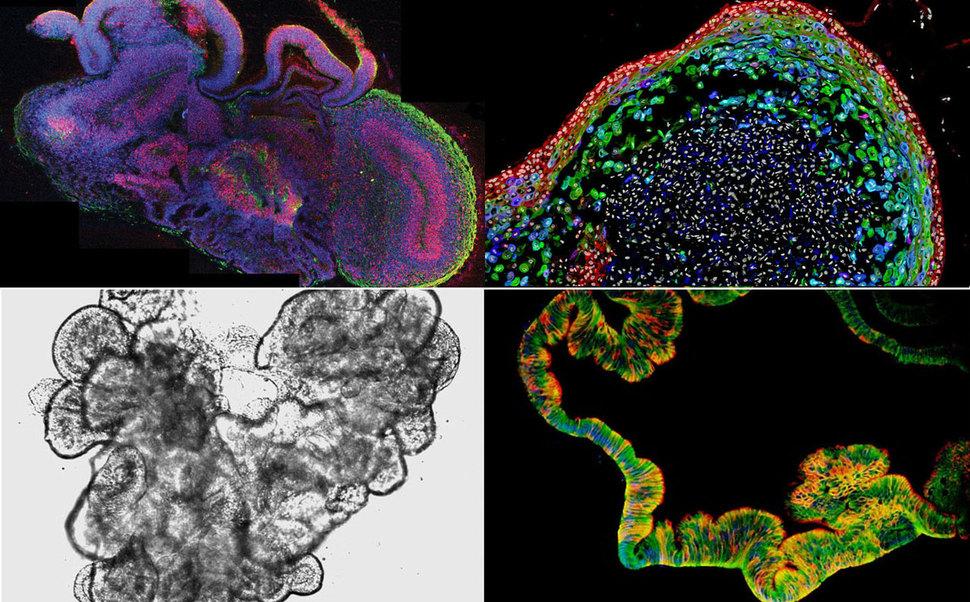 줄기세포를 분화해 만든 여러 인간 장기 유사체(오가노이드)들. 위는 지름 3~4㎜의 뇌 오가노이드(왼쪽)와 지금 0.8㎜의 식도 오가노이드를 보여주는 현미경 영상이며, 아래는 국내 연구진이 성숙화 기법을 이용해 만든 지름 2~3㎜의 소장 오가노이드 영상(왼쪽)과 속빈 구조를 보여주는 단면 영상. 오스트리아 분자생명공학연구원, 미국 신시내티어린이병원, 한국생명공학연구원 등 제공