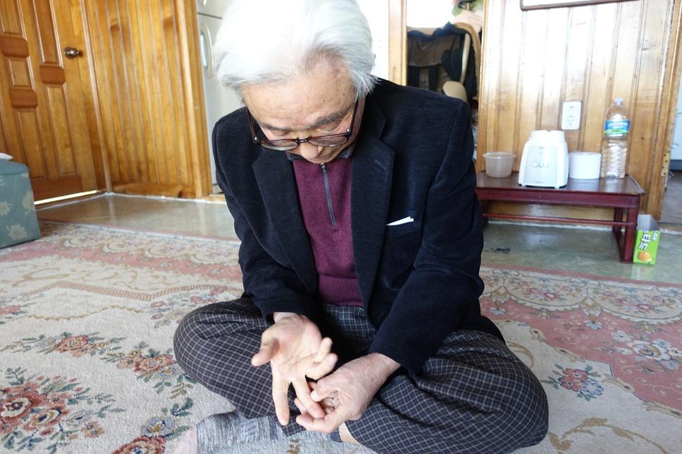 오수송씨의 오른손 중지에는 지서에 수감되기 전 전기고문을 받았던 흔적이 남아있다.