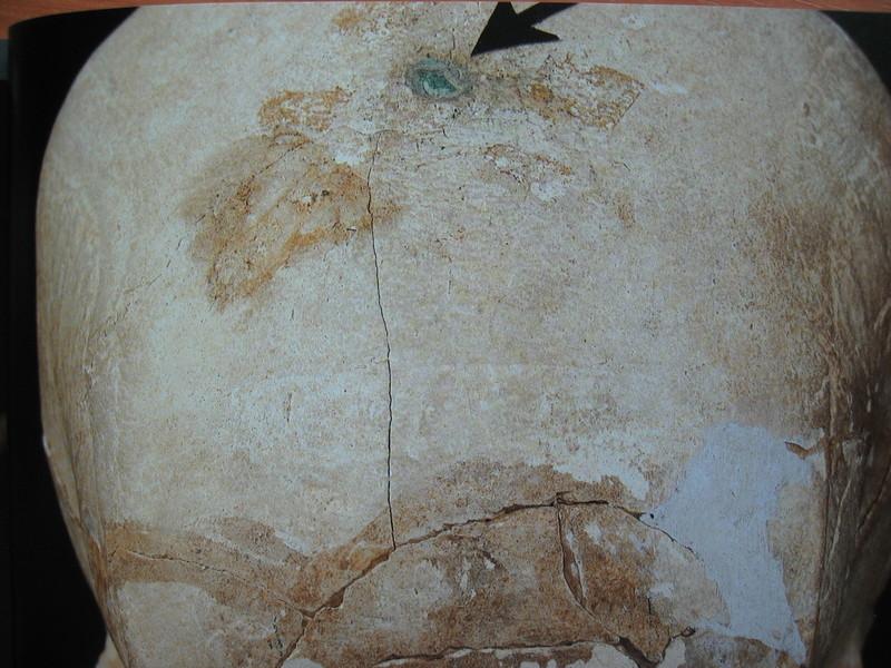일본 야요이시대 무덤에서 나온 한 머리뼈에 청동제 무기가 박혀 있다. 이런 인골 연구에는 법의학의 도움이 필요하다. 권오영 교수 제공